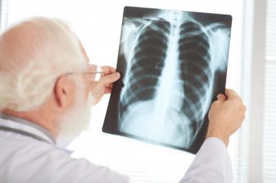 Kasus Kematian Akibat Kanker Paru Meningkat 18% pada 2020