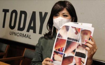 Polisi Panggil Suami Yuyun Sukawati Atas Dugaan Aniaya Anak
