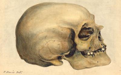Horor Banget, Museum Ini Koleksi Mayat Manusia Budak Kulit Hitam