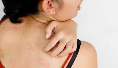 3 Perawatan Sederhana untuk Hilangkan Jerawat di Badan