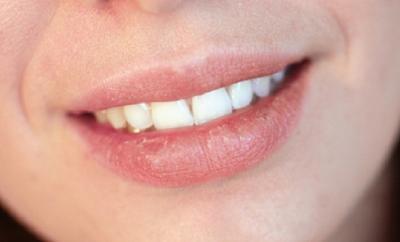 Mengenal Lanolin, Kandungan Super untuk Melawan Bibir Pecah-Pecah