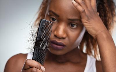 Berbagai Cara Mengatasi Rambut Rontok dengan Bahan Alami, Coba Yuk