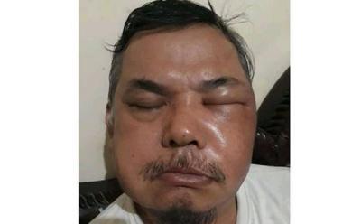 Wajah Pria Bengkak Usai Divaksin, Siti Nadia: Bisa Saja Bukan karena Vaksin!