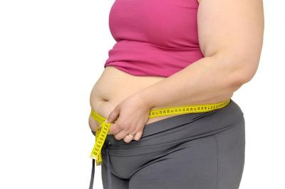 Deretan Orang Obesitas di Dunia