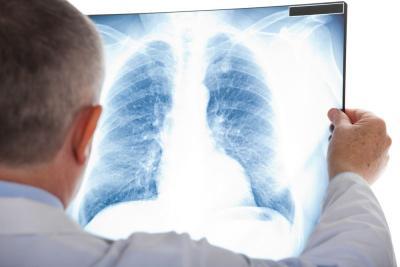 Layaknya Covid-19, Adakah Rapid Test untuk TBC?