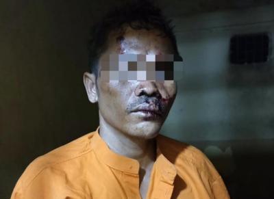 Biadab! 4 Fakta Pria di Riau Kapak Bayi hingga Tewas, Penyebabnya Sungguh Sepele