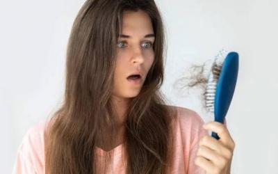Beautypedia: 5 Cara Atasi Kebotakan Dini yang Alami