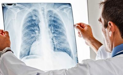 6 Faktor Risiko Kanker Paru, Penyakit yang Diidap Legenda Bulu Tangkis Verawaty Fajrin