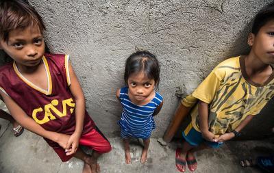 Anemia Jadi Penyumbang Risiko Stunting di Indonesia