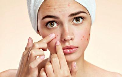 Beautypedia, Ini Rutinitas Perawatan Kecantikan untuk Kulit Berjerawat