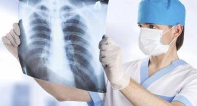 Kasus TBC Indonesia Urutan Ke-3 Dunia, Wamenkes Terapkan 3 Strategi
