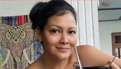 Tumor Pecah, Melanie Subono Jalani Operasi Angkat Rahim